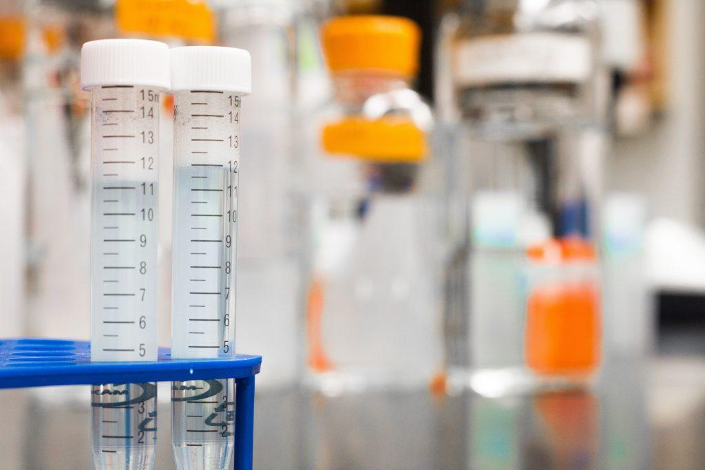 Testtubes in het onderzoek naar mestcellen in het prikkelbare darmsyndroom